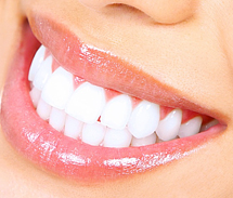 Выравнивание зубов - улыбайтесь шире!